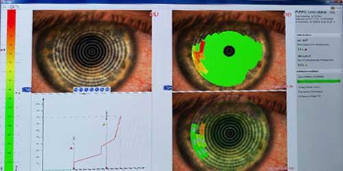 topografia-corneale